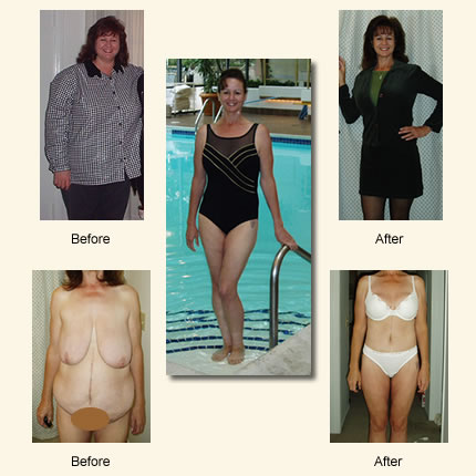 Weight Loss Surgery Patients Turn To Tijuana Cosmetic Surgeon To