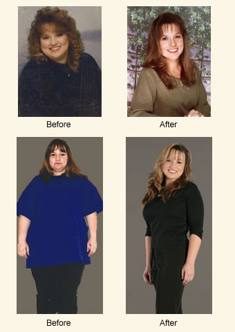 Dana, Age 36. Procedures: Lower Body Lift, Breast Lift with Implants. Weight Loss: 190 lbs