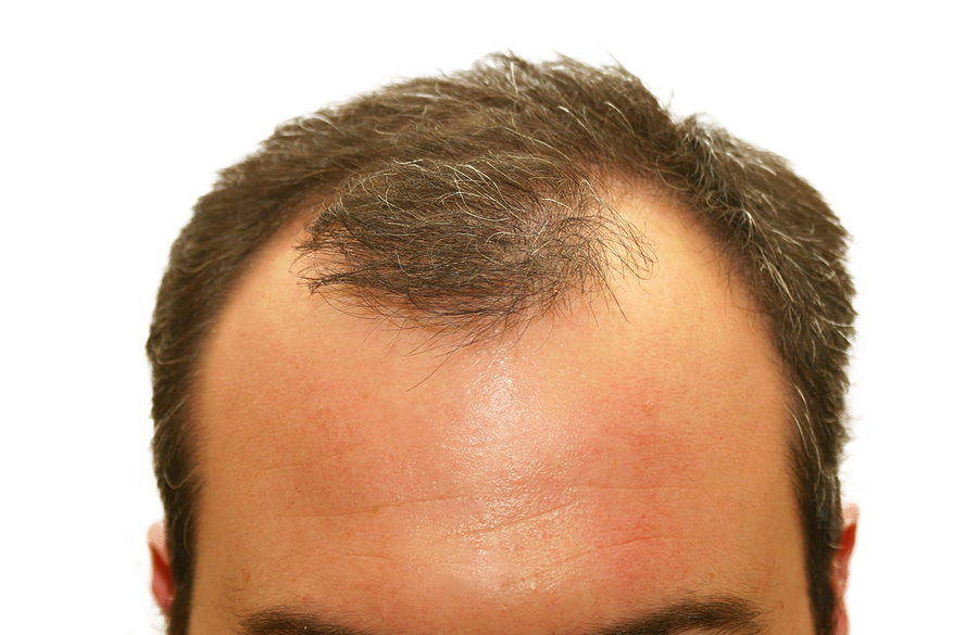 Male pattern baldness hair loss symptoms