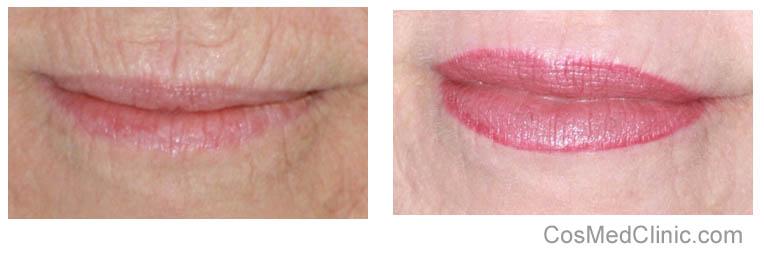 reduce wrinkles around lips