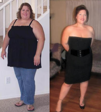 Melanie S Journey How Weight Loss Surgery Changed My Life Cosmed