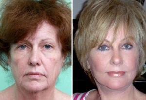 Facelift- cirugía plástica en paciente mujer. Cosmed Clinic