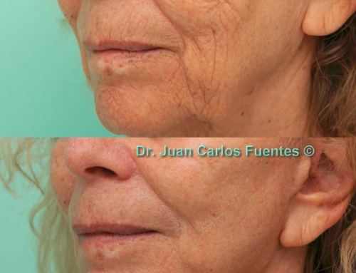 The fountain of youth: a Facelift at COSMED