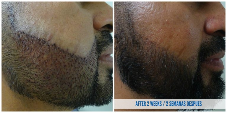 beard hair transplant before and after