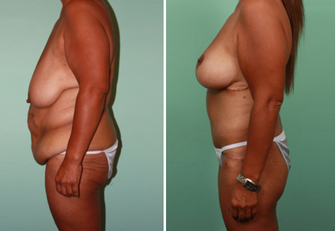 tummy tuck with breast augmentation before and after