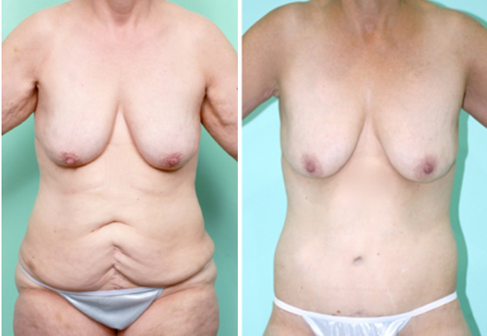 Arm lift & Abdominoplasty Surgery