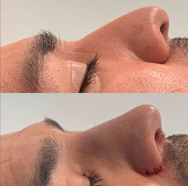 before and after rhinoplasty for men tijuana