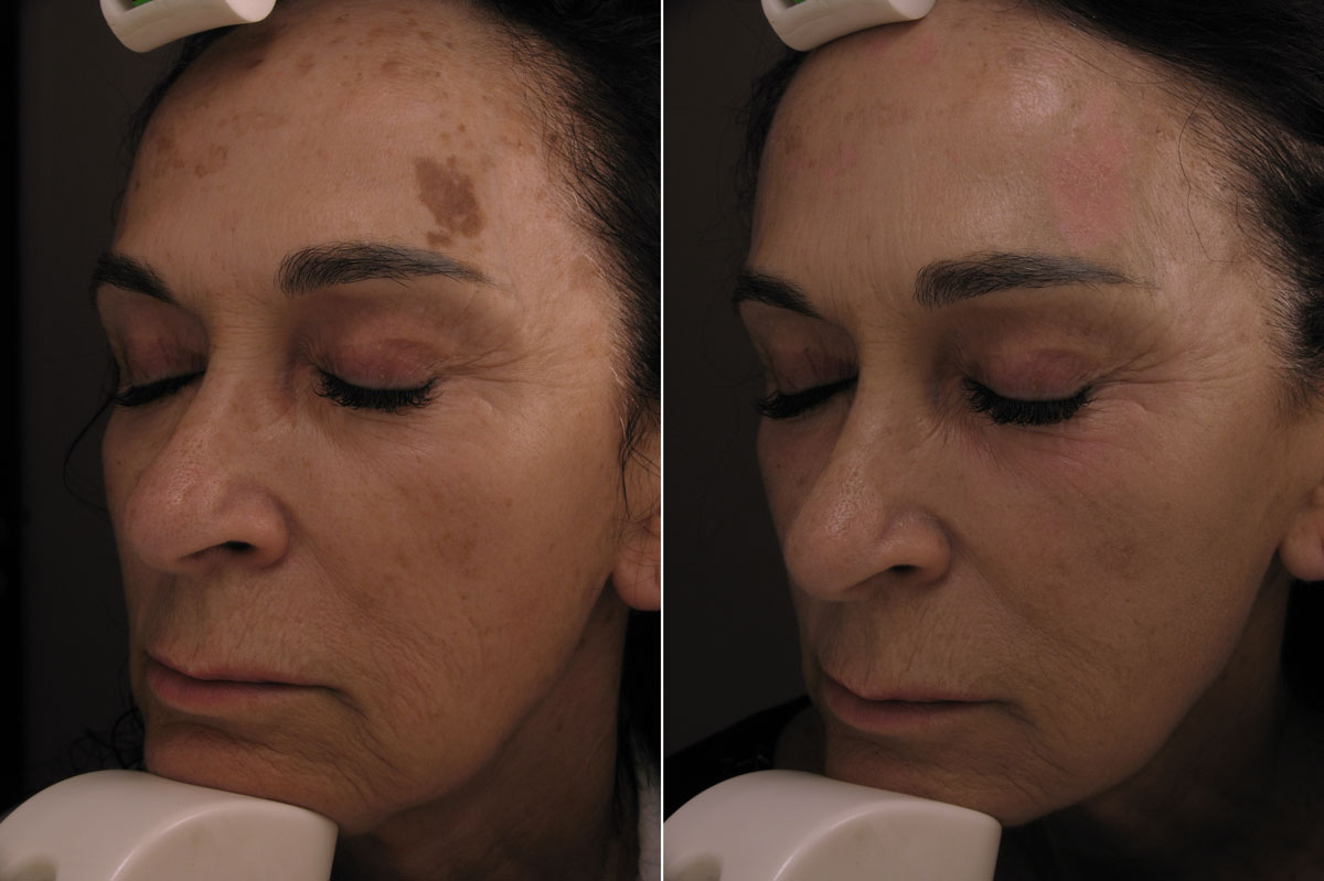 Before and After Dermablate Laser