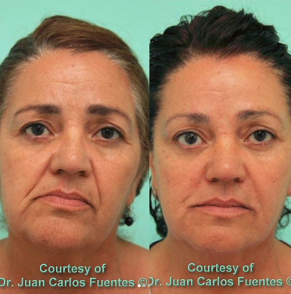 botox and fillers cosmed tijuana