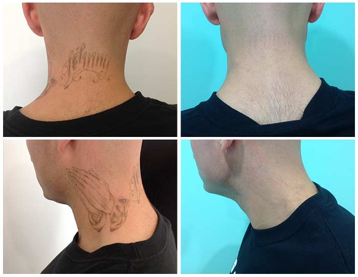 laser tattoo removal in cosmed tijuana