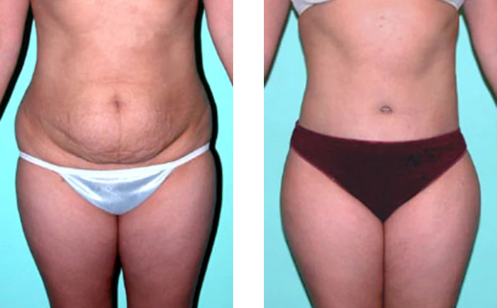 Tummy Tuck Before and After Tijuana Mexico Dr Quiroz