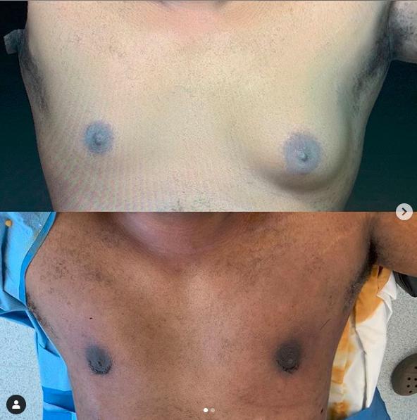 ginecomastia surgery in tijuana dr castaneda