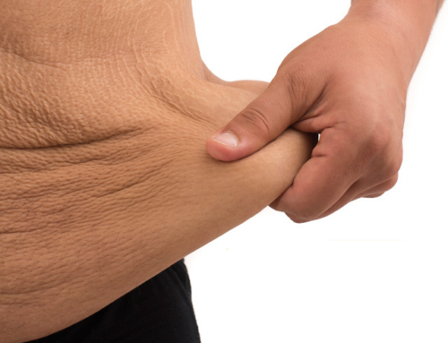 After weight-loss surgery with Dr. Quiroz