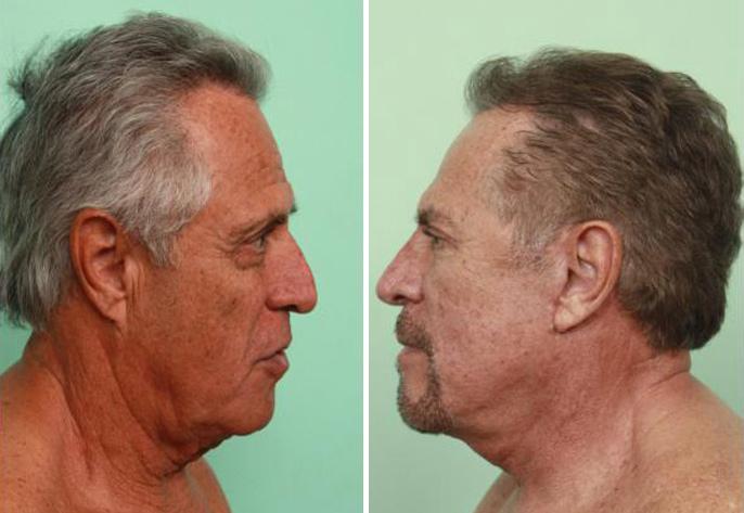 Cirug 237 A De Rostro Fotos Antes Y Despu 233 S Cosmed Clinic