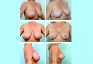 breast13